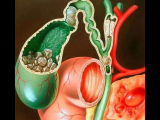 胃切除术后胆囊结石的预防