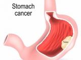 初始潜在治愈性切除的胃癌患者治疗策略