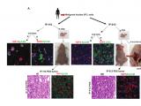 YAP1介导的胃腺癌腹膜转移受YAP1抑制作用减弱