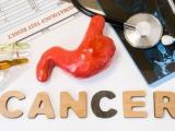 早期胃癌具有明显不同的遗传特征和临床表现