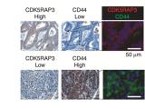 CDK5RAP3作为肿瘤抑制因子对胃癌细胞的自我更新和侵袭具有负调控作用,并受ERK1/2信号转导的调控