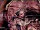 根治性D2胃切除术后腹腔冲洗细胞学阳性但无腹膜转移胃癌患者的观察研究(图文)