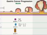 NFKB1的丢失导致肿瘤坏死因子的表达和STAT1的激活,以促进小鼠胃肿瘤的发生